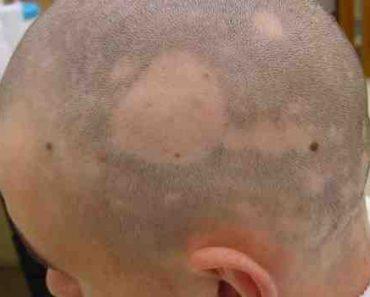 alopecie-infectieuse