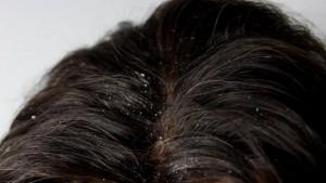 Cheveux avec des pellicules