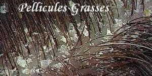 Pellicules grasses