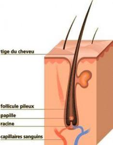 Les cheveux tombent du psoriasis sur la tête