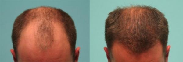 Résultat d'un implant capillaire par la technique de FUT
