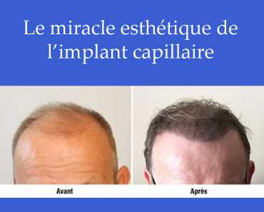 Le miracle esthétique de l'implant capillaire